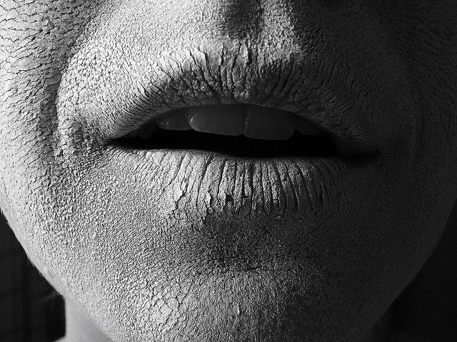 lábios rachados no inverno